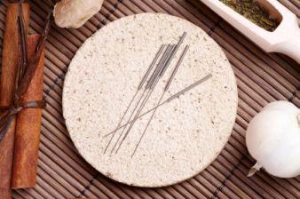 Acupunture Needles | Eugene, Oregon